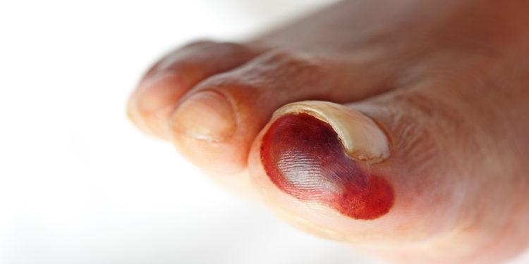 Fuß mit diabetischer Wunde.
