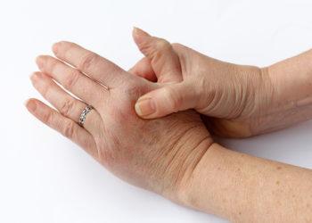 Vor wenigen Jahren wurde eine Studie veröffentlicht, die aufzeigte, wodurch das Knacken der Finger entsteht. Nun hegen Forscher Zweifel an der These und behaupten, dass eine andere Ursache dafür verantwortlich sei. (Bild: Astrid Gast/fotolia.com)