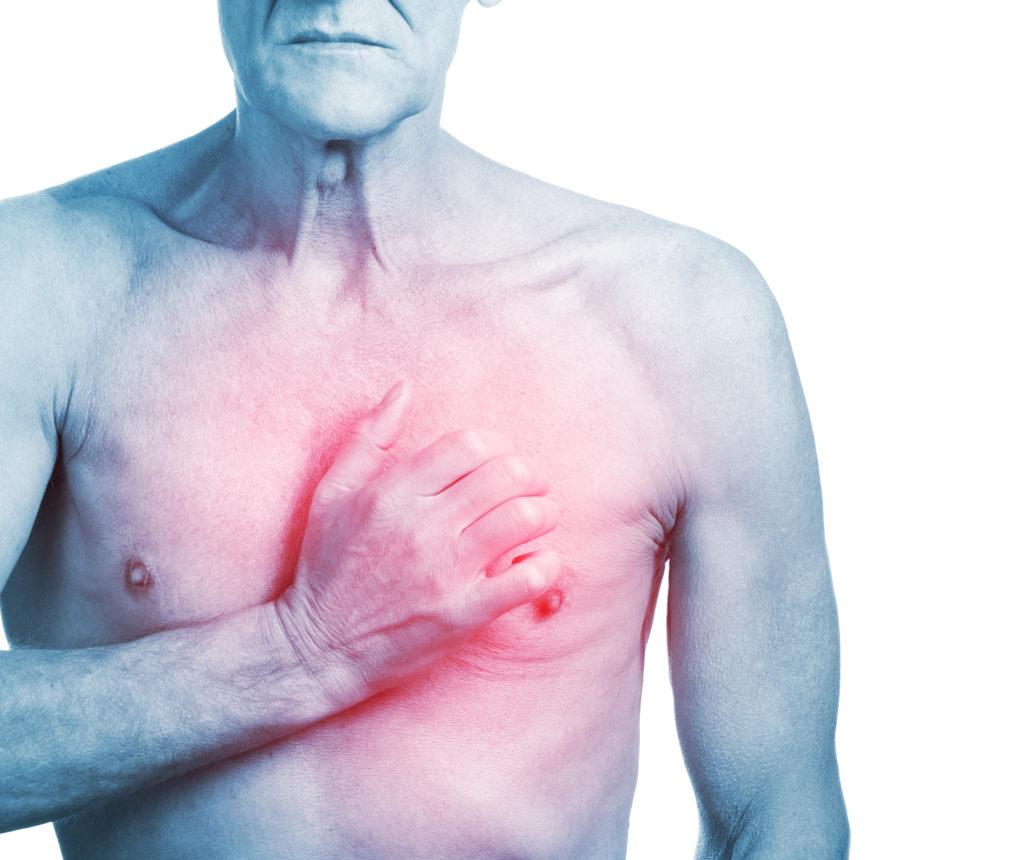 Forscher fanden heraus, dass Testosteron ältere Männer vor Herzinfarkten und Schlaganfällen schützen kann. Somit könnte Testosteron das kardiovaskuläre Risiko von diesen Menschen erheblich senken. (Bild: Glebstock/fotolia.com)