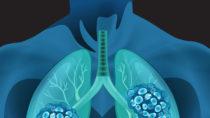 Kleinzellige Lungenkarzinome bilden häufig eine Resistenz gegen Chemotherapeutika. Wissenschaftler haben nun die Ursache hierfür indentifiziert. (BIld: blueringmedia/fotolia.com)
