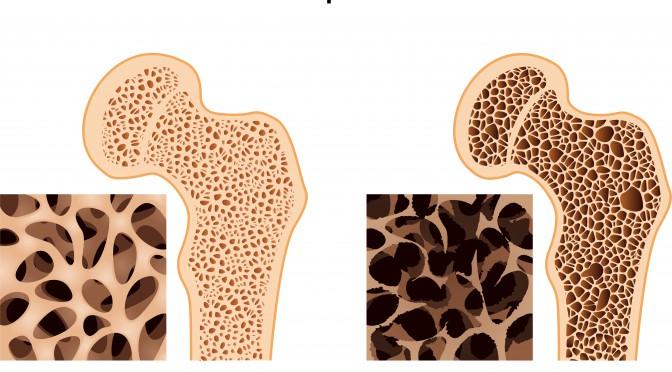 Schaubild mit Darstellungen von Knochen mit und ohne Osteoporose