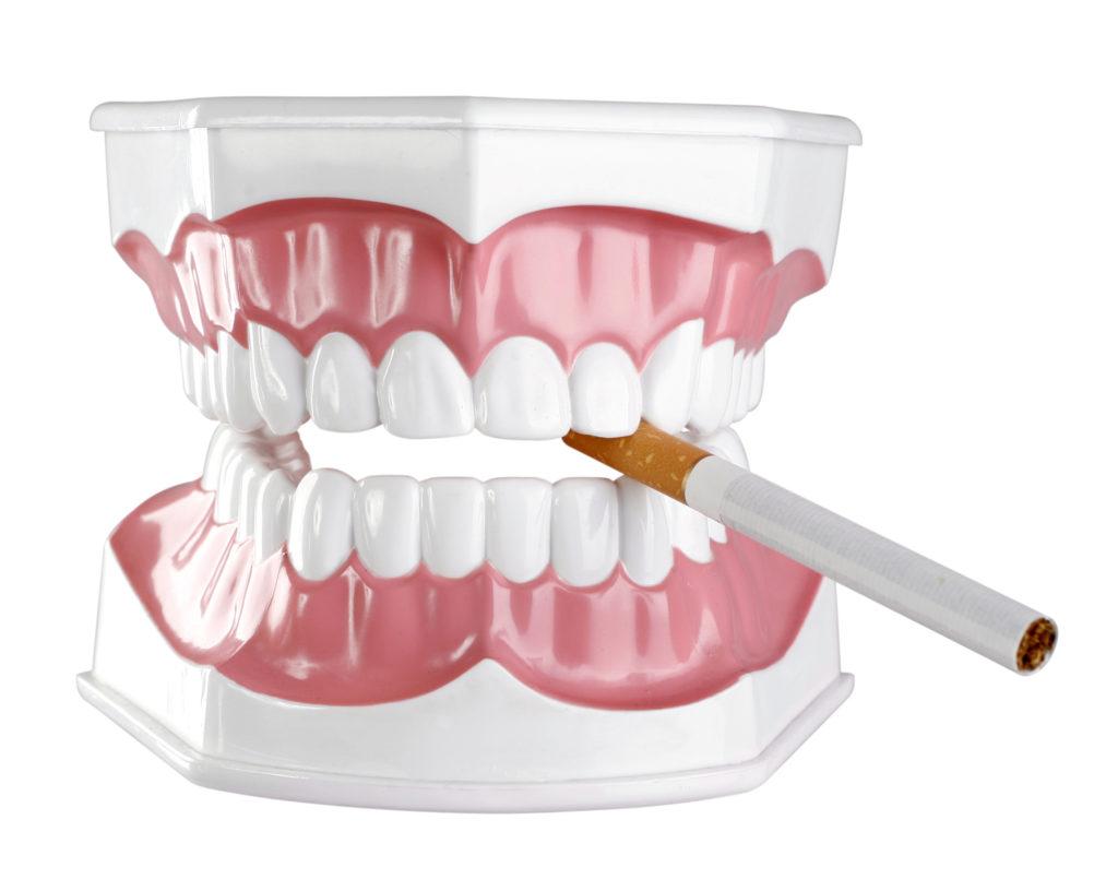 Raucher erkranken besonders oft an Parodontitis und müssen daher verstärkt auf richtiges Zähneputzen achten. (Bild: diyes/fotolia.com)