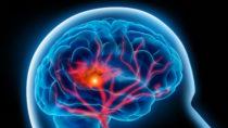 Forscher stellten fest, dass das Gen FOXF2 die Blutgefäße in unserem Gehirn schädigt. Das kann schwere Erkrankungen zur Folge haben, wie beispielsweise Demenz und Schlaganfälle. (Bild: psdesign1/fotolia.com)