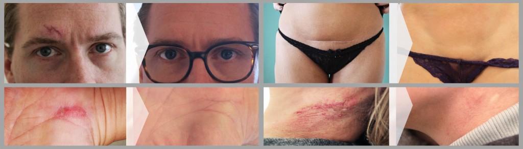 Die Ergebnisse nach dreimonatiger, optimaler Narbenpflege lassen sich gut auf den Vorher-Nachher-Bildern erkennen. (Quelle: www.scarcare.de)