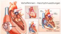 Wenn der Partner unerwartet verstirbt, steigt zunächst die Wahrscheinlichkeit für Herzprobleme. (Bild: Henrie/fotolia.com)