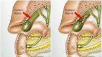 Oft sind Gallensteine in der Gallenblase für heftige Schmerzen verantwortlich. Bild: Henrie - fotolia