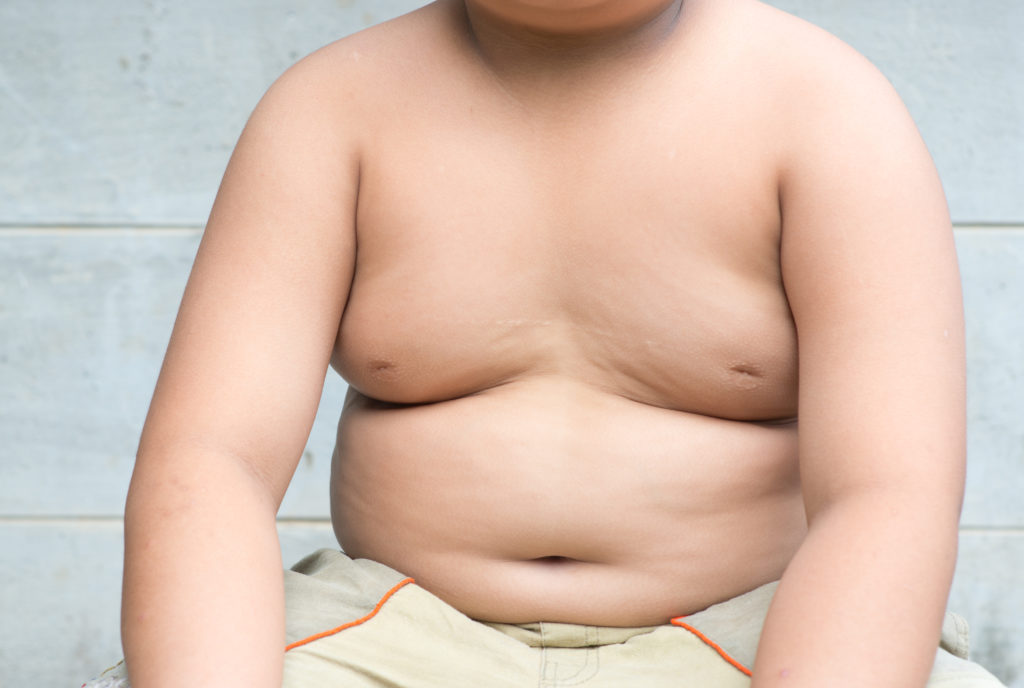 Übergewicht und Fettleibigkeit bei Kindern können zur Folge haben, dass diese Bluthochdruck entwickeln. (Bild: kwanchaichaiudom/fotolia.com)