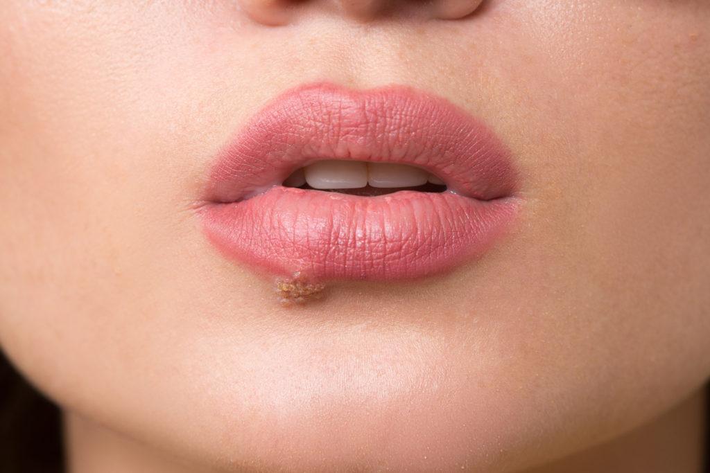 Bei einer Herpes-Infektion können verschiedene Hausmittel Linderung bewirken und zur Heilung beitragen. (Bild: kopitinphoto/fotolia.com)