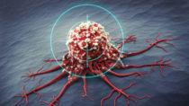 """Mediziner entdeckten jetzt ein Protein, dass bei sogenannten körpereigenen Killerzellen die Aktivität hemmt. Wenn diese """"Bremse"""" etnfernt wird, bekämpfen die Zellen noch effektiver vorhandenen Krebs. (Bild: psdesign1/fotolia.com)"""
