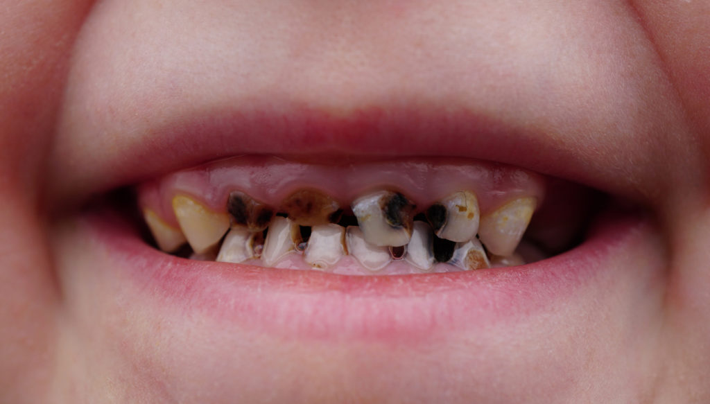 Meist sind Verfärbungen der Zähne bei Kindern durch Karies bedingt, doch kann sich auch eine Molare-Inzisive-Hypomineralisation verfärbte und poröse Zähne bedingen. (Bild: Trezvuy/fotolia.com)