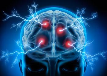 Menschen mit Schizophrenie leiden unter einer Vielzahl von charakteristischer Störungen. Eine Behandlung gestaltet sich meist als äußerst schwierig. Jetzt konnte festgestellt werden, dass unser Gehirn anscheinend die Fähigkeit hat sich selbst zu reorganisieren. (Bild: psdesign1/fotolia.com)