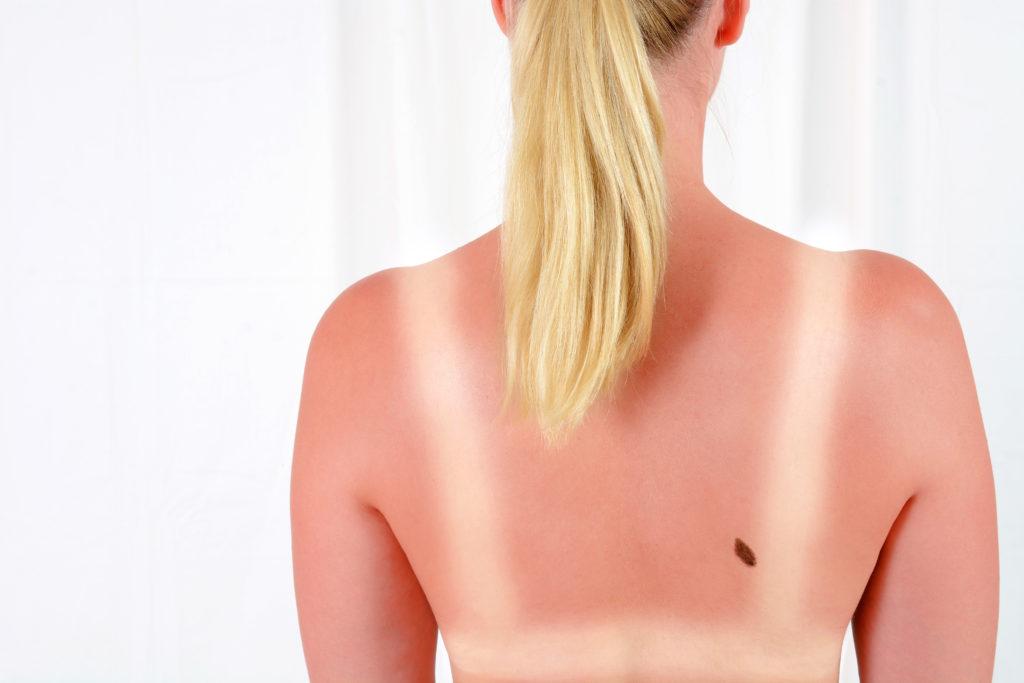 Starke Sonneneinstrahlung auf unserer Haut kann zu Krebs führen. Viele Menschen schützen sich ungenügend vor der Sonne, obwohl ausreichender Sonnenschutz Hautkrebs vermeiden würde. Erstaunlicherweise schützen sich auch viele Menschen nicht richtig, die bereits vorher eine Hautkrebserkrankung erlitten hatten. (Bild: Dan Race/fotolia.com)