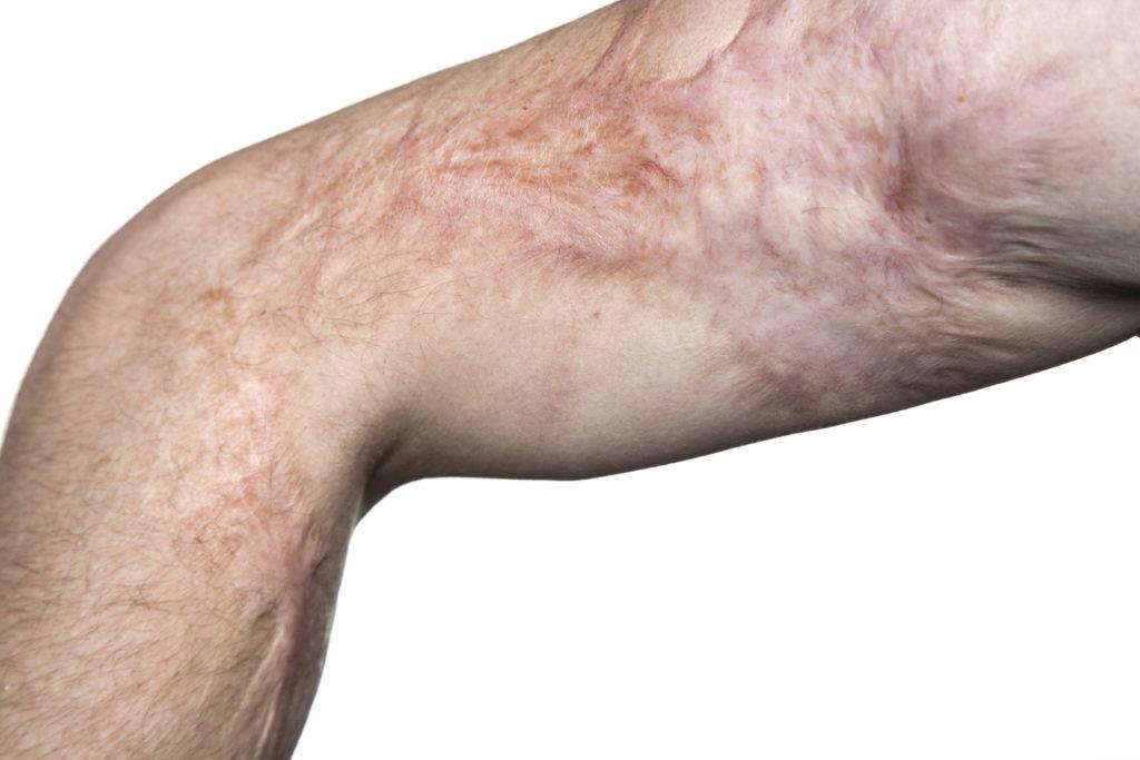 Die Wundheilung bei großflächigen Verbrennungen ist oftmals von Komplikationen und der Bildung entsprechender Narben begleitet. Eine neu entwickelte  Methode könnte hier deutliche Vorteile mit sich bringen. (Bild: aleksicze/fotolia.com)