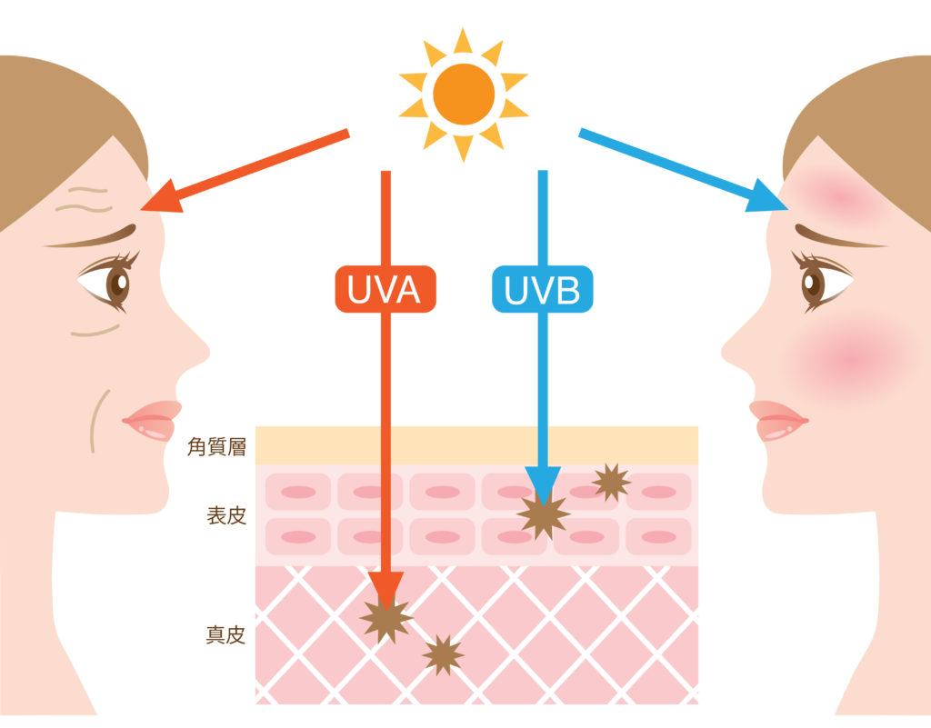 Ein Sonnenbrand kann die Haut nachhaltig schädigen. Sehr gefürchtet ist der Hautkrebs. Bild: m0622 - fotolia
