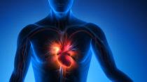 Bei Verdacht auf einen Herzinfarkt ist einen schnelle, zuverlässige Abklärung dringend erforderlich. Hier hilft ein neues Diagnoseverfahren das am UKE entwickelt wurde. (Bild: psdesign1/fotolia.com)