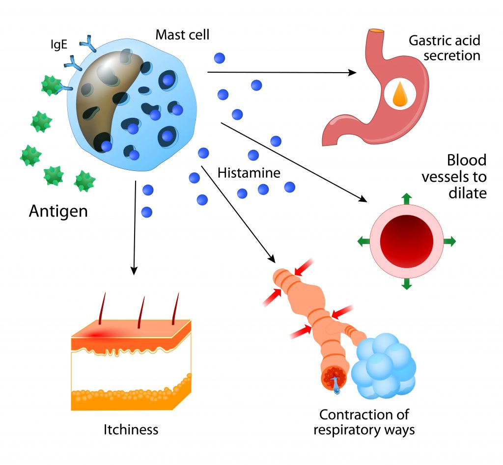 So wirkt Histamin im menschlichen Körper. (Bild: designua/fotolia.com)