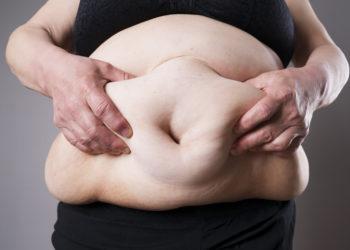 Übergewicht und Fettleibigkeit steigern unser Risiko an Multiple Sklerose zu erkranken. Achten Sie also immer auf einen gesunden Body-Mass-Index, um die Gefahr einer Erkrankung durch MS zu verhindern. (Bild: staras/fotolia.com)