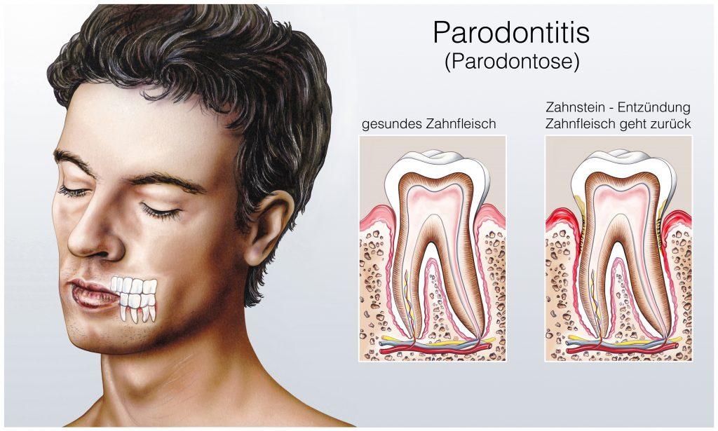 Bei einer Parodontitis ist der Zahnfleischrückgang irreversibel und es droht schlimmstenfalls der Zahnverlust. (Bild: Henrie/fotolia.com)