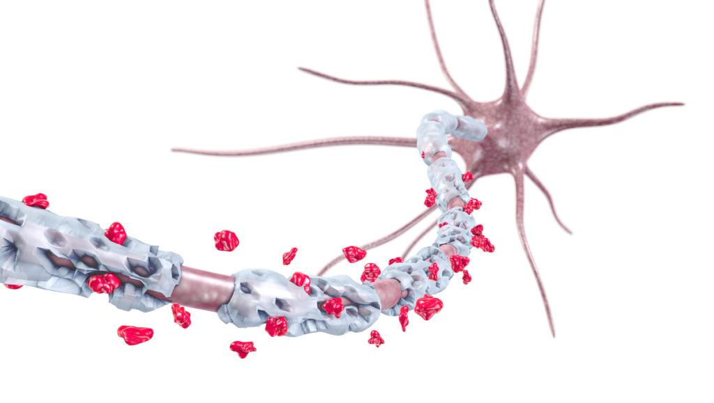 Die Zerstörung der Isolierschicht von Nervenzellen bei Multipler Sklerose kann mit einem Pflanzenwirkstoff möglicherweise gestoppt werden. (Bild: ag visuell/fotolia.com)