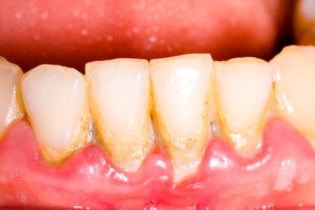 Bildet sich Plaque auf den Zähnen, ist das Risiko für einen Rückgang des Zahnfleischs deutlich erhöht. (Bild: Zsolt Bota Finna/fotolia.com)