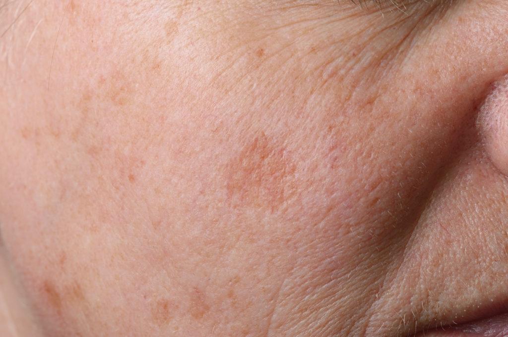 Forscher haben olfaktorische Rezeptoren (Riechrezeptoren) in Hautzellen entdeckt. (Bild: fpic/fotolia.com)