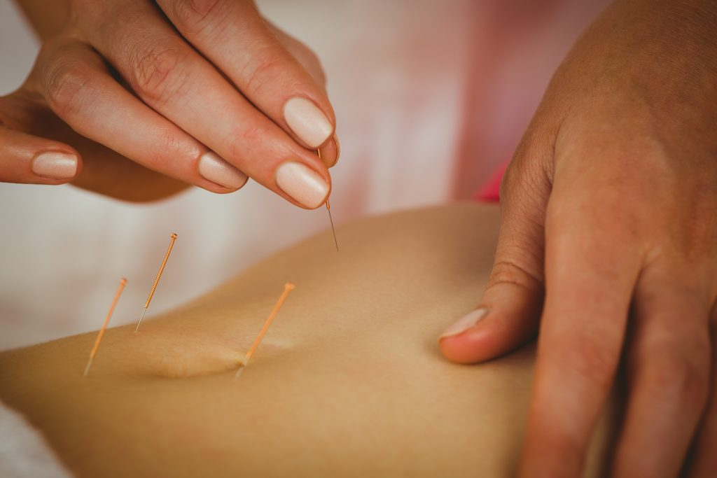 Akupunktur kann ein wirkungsvolles Verfahren sein, wenn sich verstärkt Gase im Verdauungstrakt angesammelt haben. (Bild: WavebreakmediaMicro/fotolia.com)