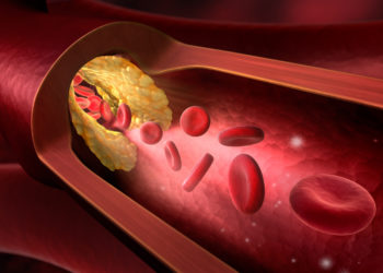 Ablagerungen in den Arterien durch Mangel an Bewegung. Bild: psdesign1 - fotolia