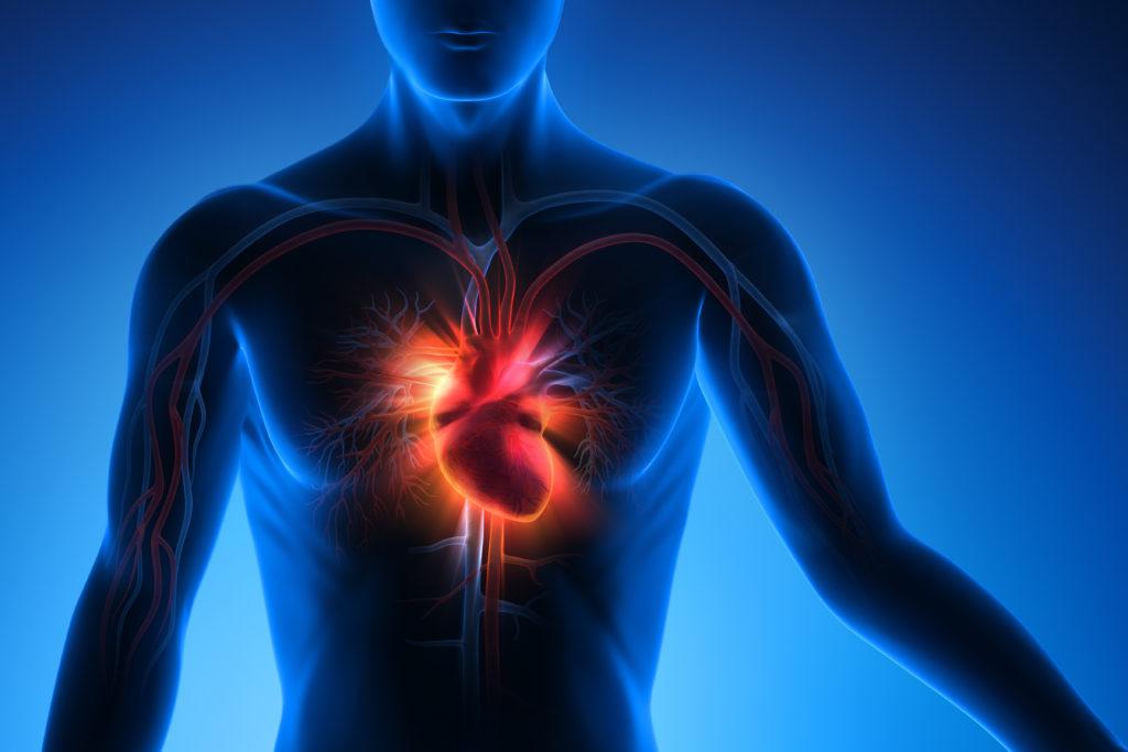 Eine Herzmuskelhypertrophie kann lebensbedrohliche Folgen wie eine Herzschwäche oder einen Herzinfarkt haben. (Bild: psdesign1/fotolia.com)