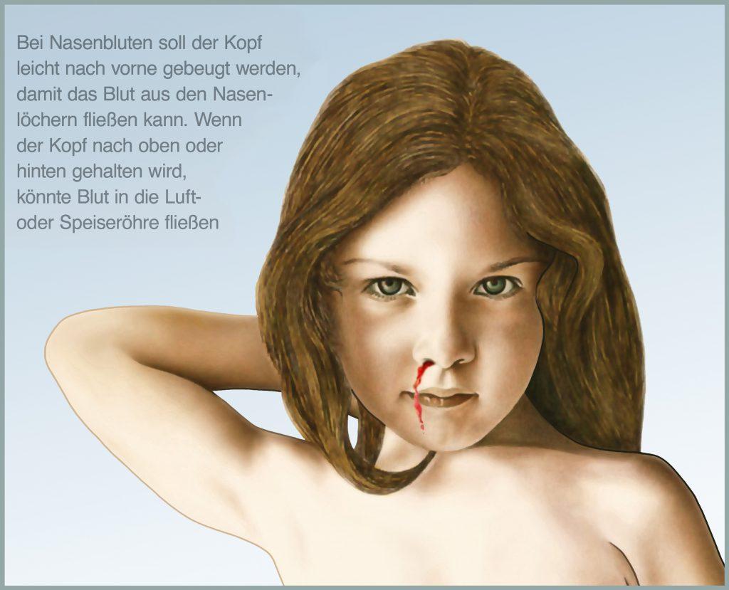 Nasenbluten bei Kindern. Bild: Henrie - fotolia