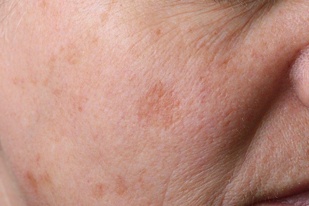 EIn weitverbreitete Form der Pigmentflecken sind sogenannte Altersflecken, die jedoch kein gesundheitiches Risiko mit sich bringen. (Bild: fpic/fotolia.com)