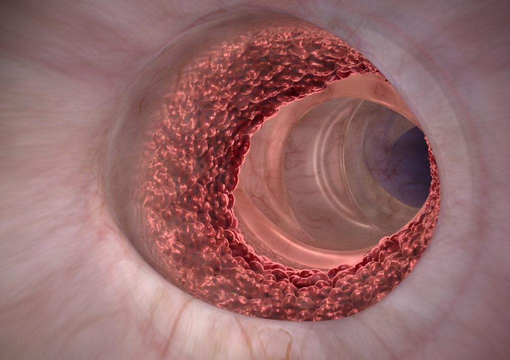Darmkrebs ist bei einer frühzeitigen Diagnose in vielen Fällen heilbar. Flüssigbiopsien in Form eines Bluttests sollen den Krebs früher erkennbar machen. (Bild: Alex/fotolia.com)
