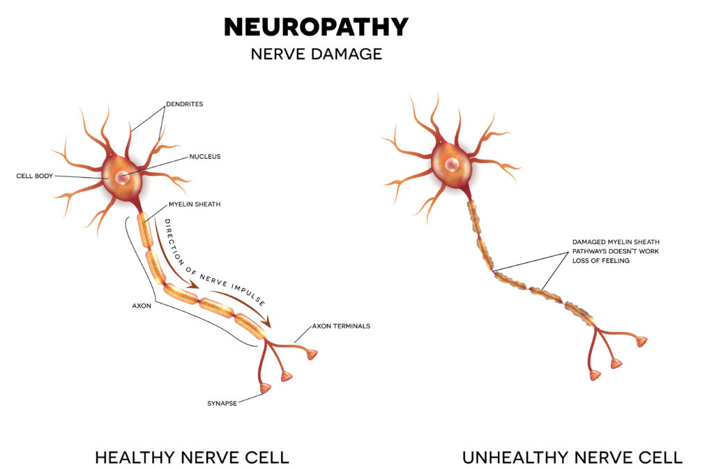 Chronische Schmerzen in Form einer Neuropathie können mit Hilfe der rückenmarksnahen Elektrostimulation therapiert werden. (Bild: reineg/fotolia.com)