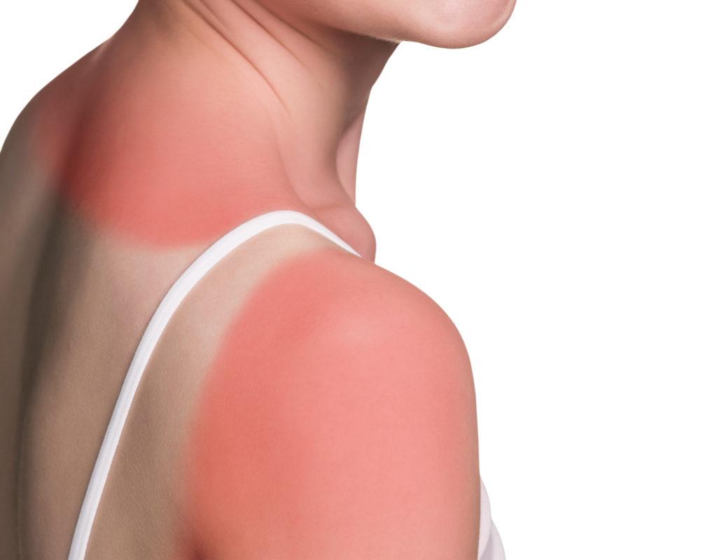 Sonnenverbrannte Haut ist keine Lappalie. Denn jeder einzelne Sonnenbrand wird auf unserem Haut-Konto gespeichert. (Bild: llhedgehogll/fotolia.com)