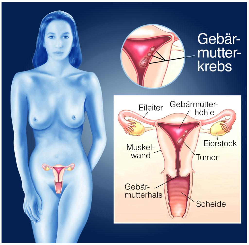 Frauen mit einer sogenannten BRAC1-Mutation sollten besonders vorsichtig sein. Forscher fanden heraus, dass diese Frauen ein erhöhtes Risiko für eine tödliche Form von Gebärmutterkrebs haben. (Bild: Henrie/fotolia.com)