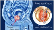 Prostatakrebs ist eine Erkrankung, die viele Männer weltweit das Leben kostet. Ein simpler Test und eine neue Art der Behandlung könnten vielleicht helfen, dass einige dieser Tode verhindert werden. (Bild: Henrie/fotolia.com)