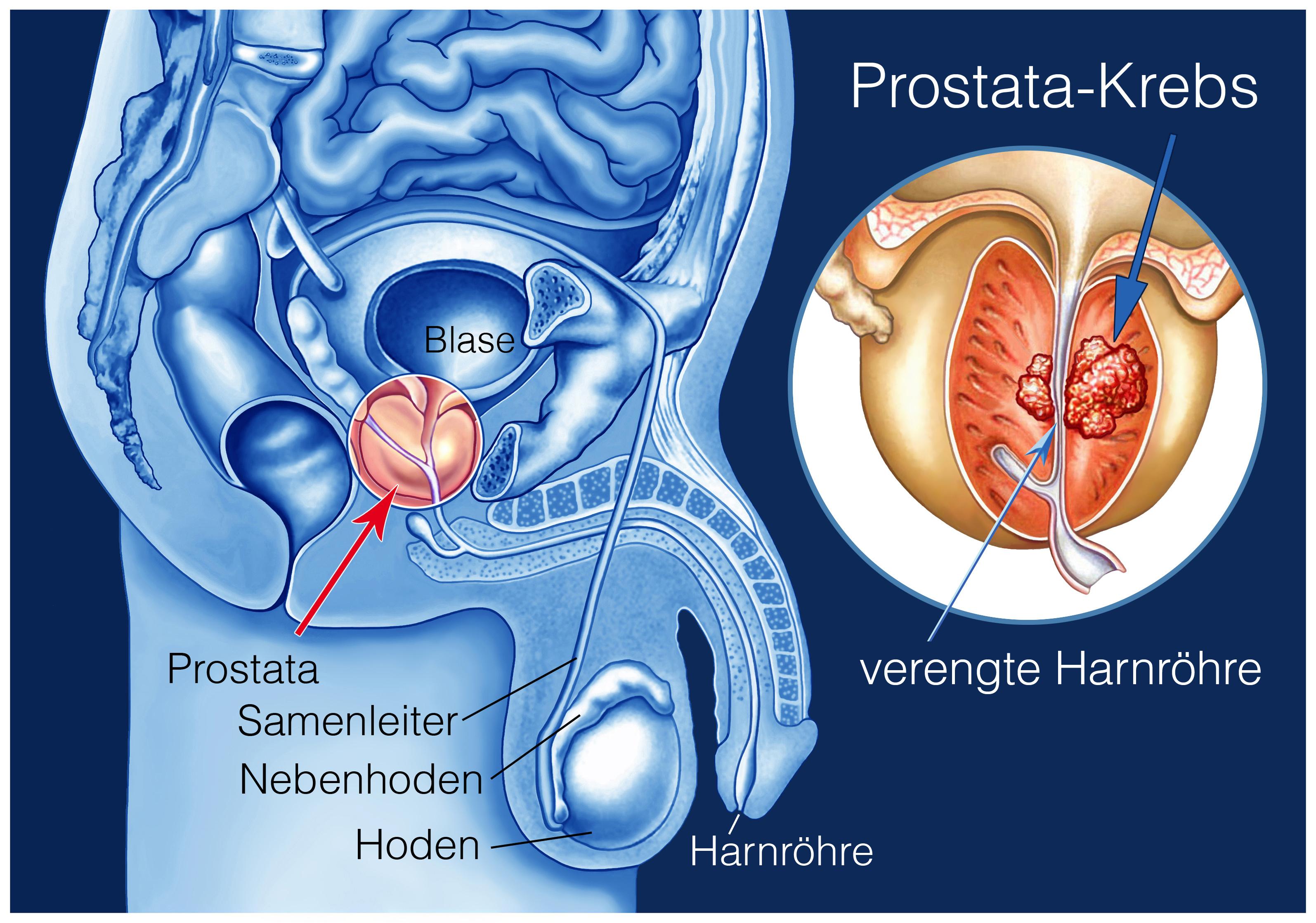 prostata vergrößert symptome
