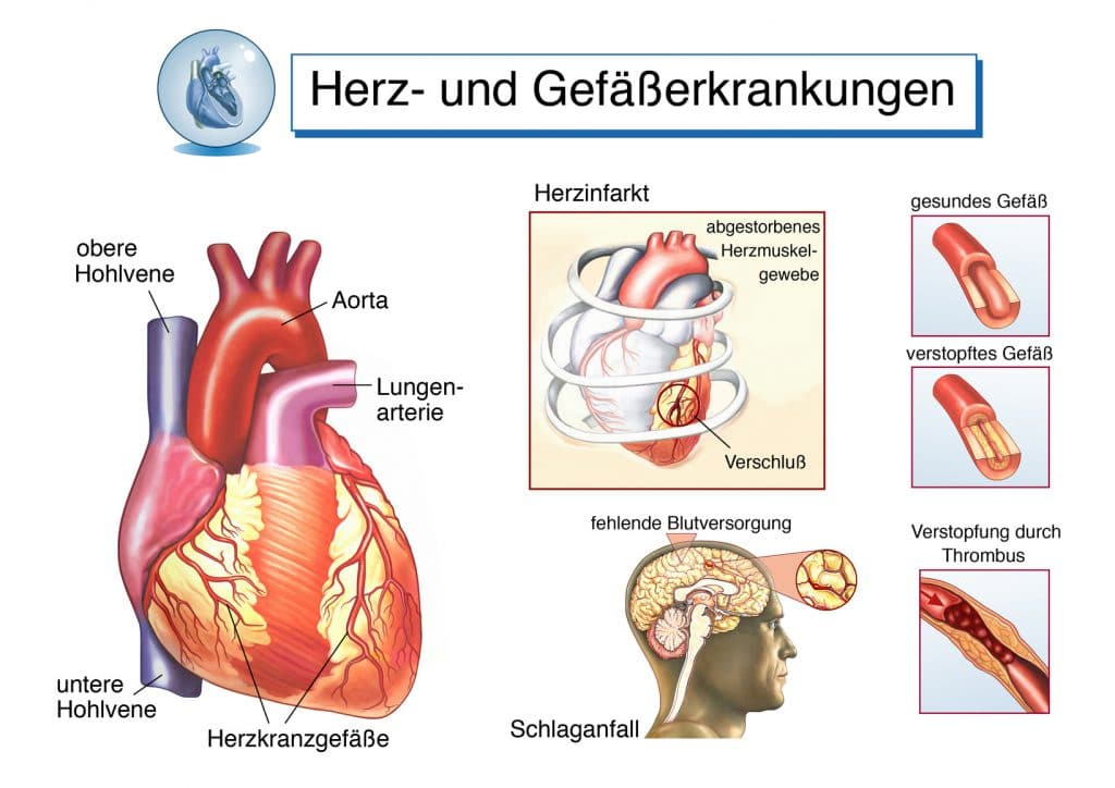 Herzstiche - Herzstechen: Ursachen, Symptome und