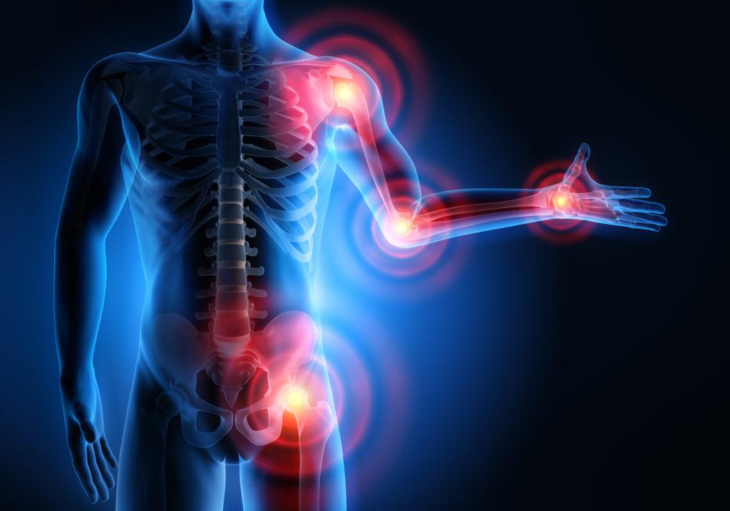 Bei der Rheumatoiden Arthritis bestehen heute dank der Personalisierten Medizin bereits sehr gute Behandlungsmöglichkeiten. (Bild: psdesign1/fotolia.com)