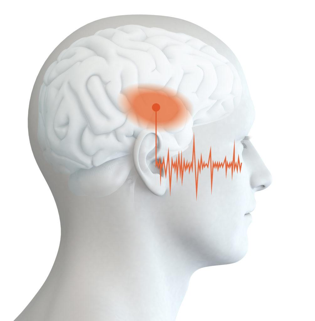 Hat ein chronischer TInnitus Auswirkungen auf die Gehirnstruktur? Diese Frage solle nun am Universitätsklinikum Jena geklärt werden. (Bild: Axel Kock/fotolia.com)