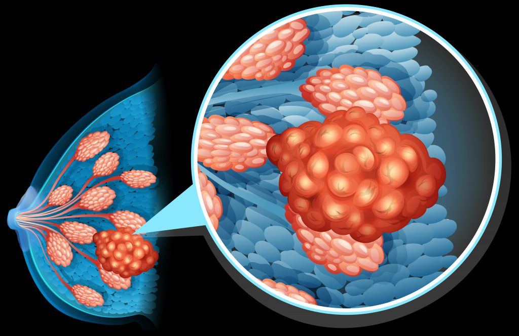 Etwa jede achte Frau erkrankt im Laufe ihres Lebens an Brustkrebs. Damit stellt das Mammakarzinom die mit Abstand häufigste Krebserkrankung bei Frauen dar. (Bild: blueringmedia/fotolia.com)