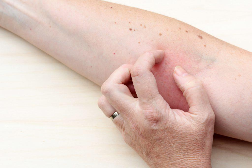 Eine Sonnenallergie tritt schnell bei ungewohnter Strahlen-Belastung auf. Statt der gewünschten Bräune zeigt sich dadurch ein stark juckender Hautausschlag. (Bild: Astrid Gast/fotolia.com)