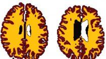 Vergleich der grauen Substanz (braun) und der weißen Substanz (gelb) bei einem 56 Jahre alten Normalgewichtigen (links) und einem 50 Jahre alten, adipösen Studienteilnehmer. (Bild: Dr. Lisa Ronan/University of Cambridge)