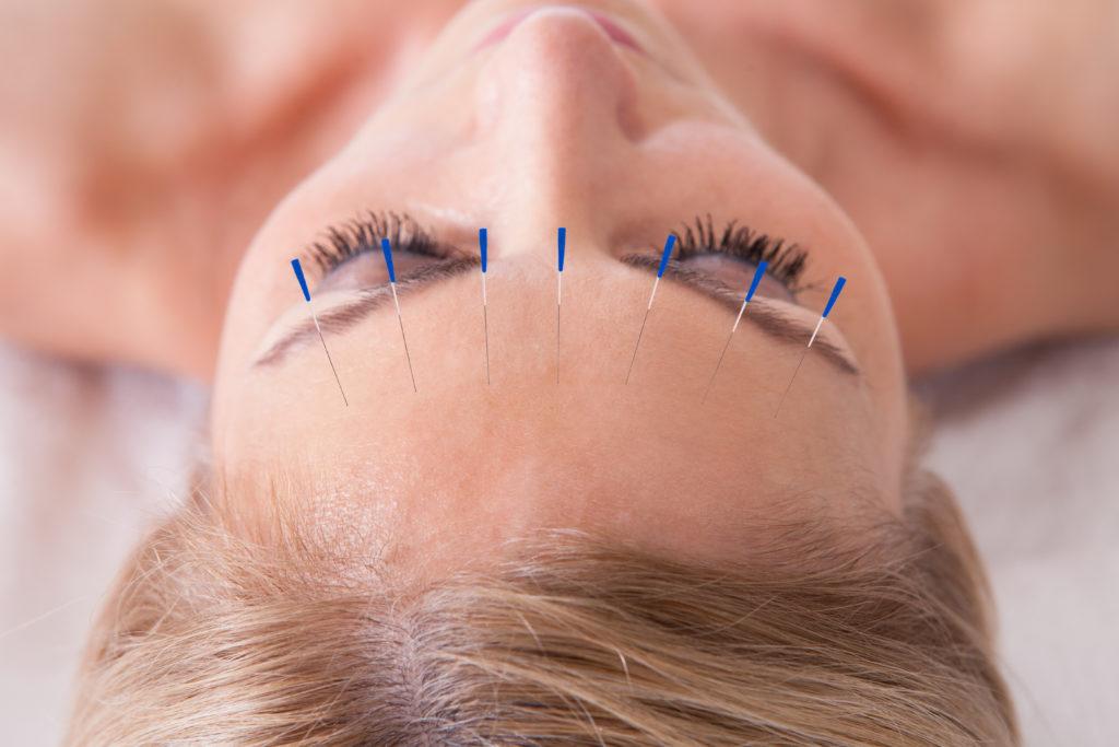 Akupunktur hilft nicht nur gegen Rückenschmerzen, sondern kann möglicherweise auch gegen Demenz im Frühstadium eingesetzt werden. (Bild: Andrey Popov/fotolia.com)