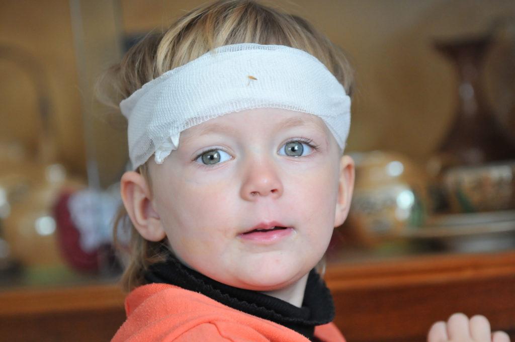 Gerade bei Kindern sind Gehirnerschütterungen und Kopfverletzungen besonders häufig. Forscher stellten jetzt fest, dass solche Verletzungen ernsthafte Spätfolgen haben können. (Bild: jörn buchheim/fotolia.com)
