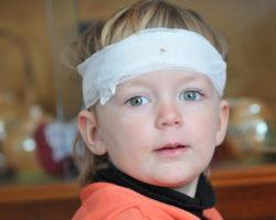 Gerade bei Kinder sind Gehirnerschütterungen und Kopfverletzungen besonders häufig. Forscher stellten jetzt fest, dass solche Verletzungen ernsthafte Spätfolgen haben können. (Bild: jörn buchheim/fotolia.com)