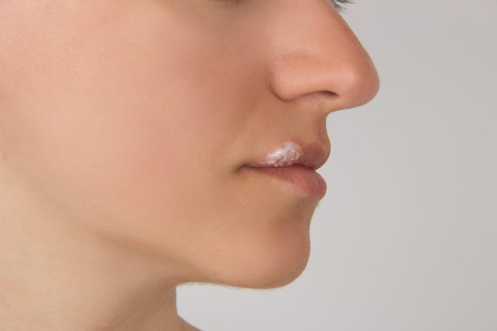 Wird Lippenherpes behandelt, sollte die Salbe besser mit Wattestäbchen und nicht mit dem Finger aufgetragen werden. So beugt man einer Ausbreitung des Virus auf andere Körperbereiche vor. (Bild: kasanka19/fotolia.com)