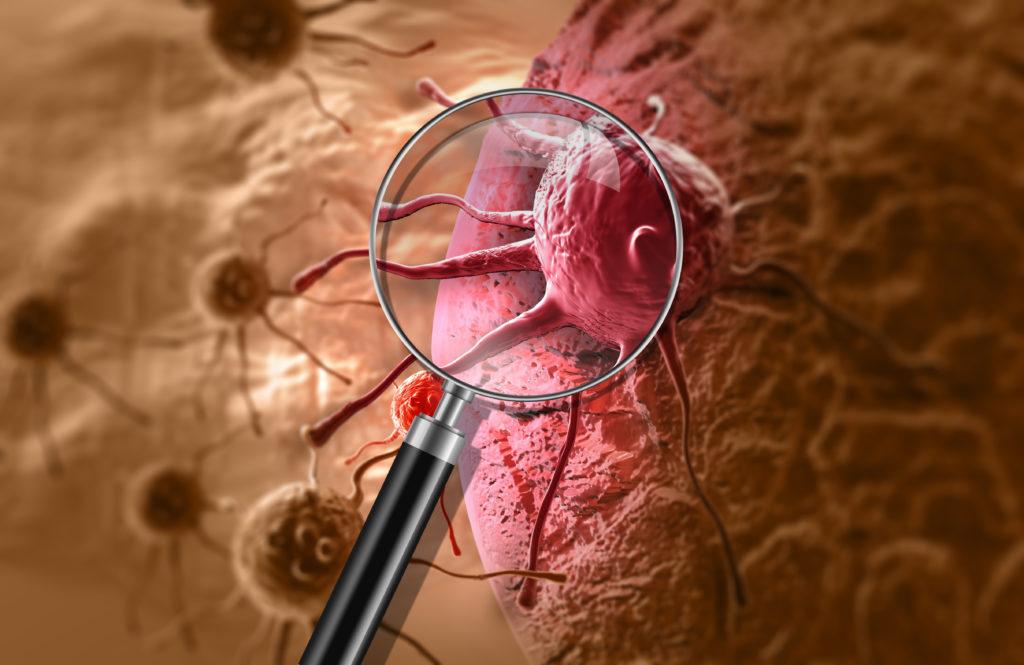 Krebs ist eine gefährliche Erkrankung die weltweit jedes Jahr viele Menschen tötet. Wissenschaftler vom Deutschen Krebsforschungszentrums entdeckten jetzt, dass eine Medikament gegen Schuppenflechte auch helfen kann Krebstumore zu behandeln.(Bild: vitanovski/fotolia.com)