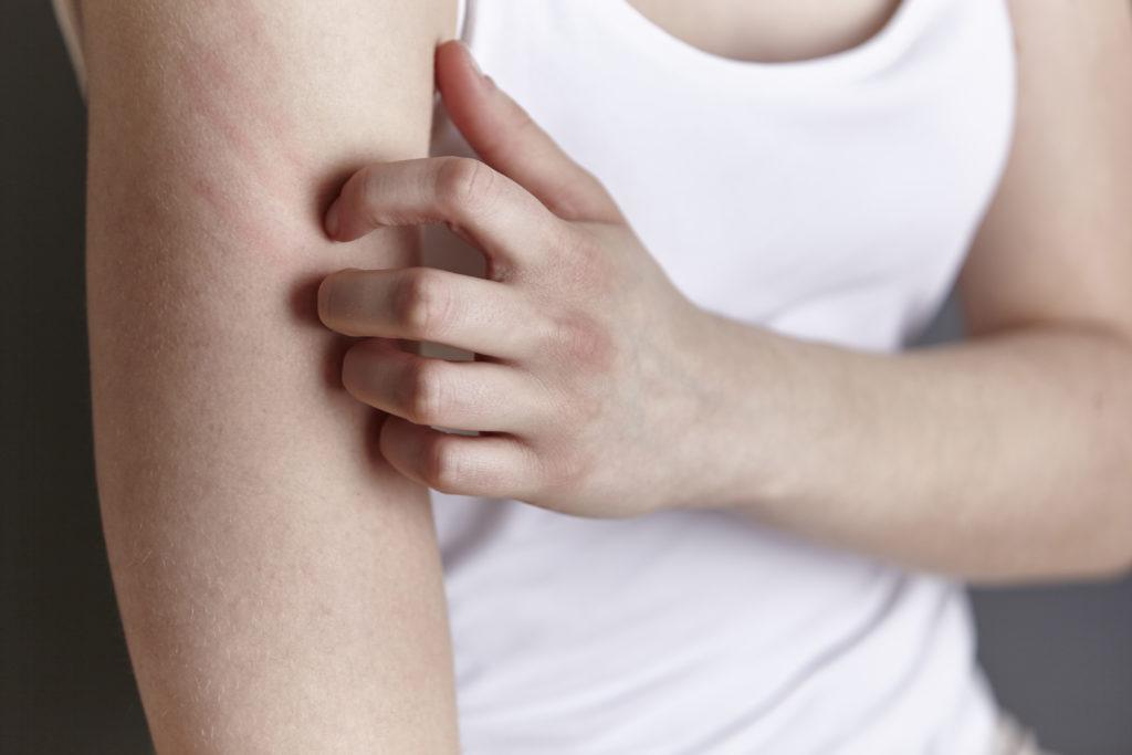 Menschen mit Neurodermitis sollten  besser Kleidungsstücke aus glatten und fein gewebten Materialien wie Baumwolle oder Viskose tragen. Dadurch wird die Haut weniger gereizt. (Bild: miamariam/fotolia.com)