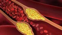 Gefäßverkalkungen lassen sich möglicherweise mit Hilfe von Omega-3-Fettsäuren therapieren. (Bild: psdesign1/fotolia.com)