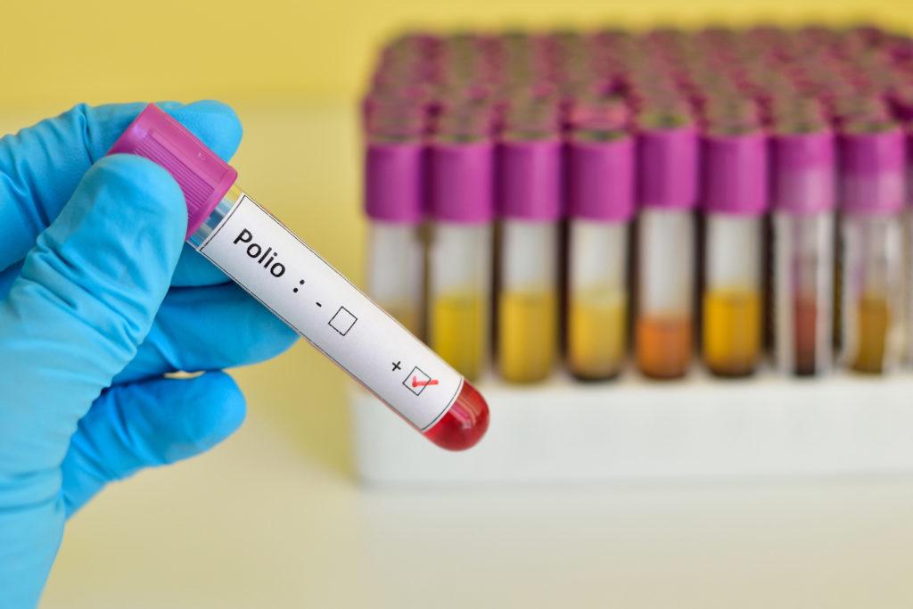 Die WHO hat zwei neue Polio-Fälle aus Nigeria gemeldet, ein schwerer Rückschlag auf dem Weg zur weltweiten Ausrottung der Erreger. (Bild: jarun011/fotolia.com)